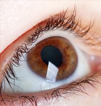Iris-de-l'oeil